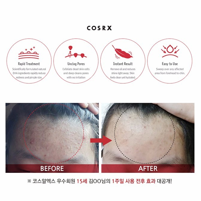 Image result for cosrx pimple pad